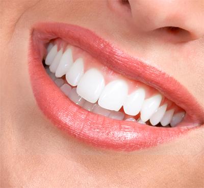 виниры на зубы цена алиэкспресс