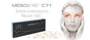 mesoeye-anons-1